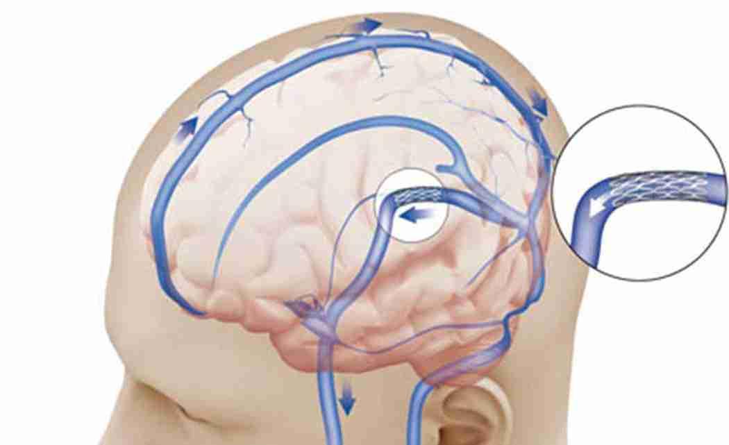 Brain-stents-show-big-promise-for-certain-stroke-patients-