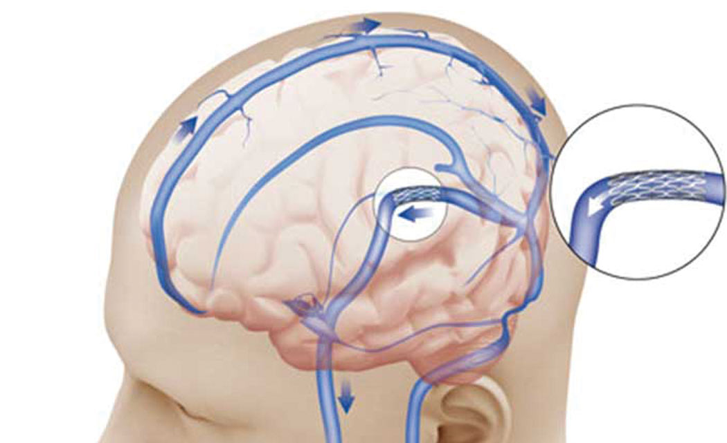Brain-stents-show-big-promise-for-certain-stroke-patients-