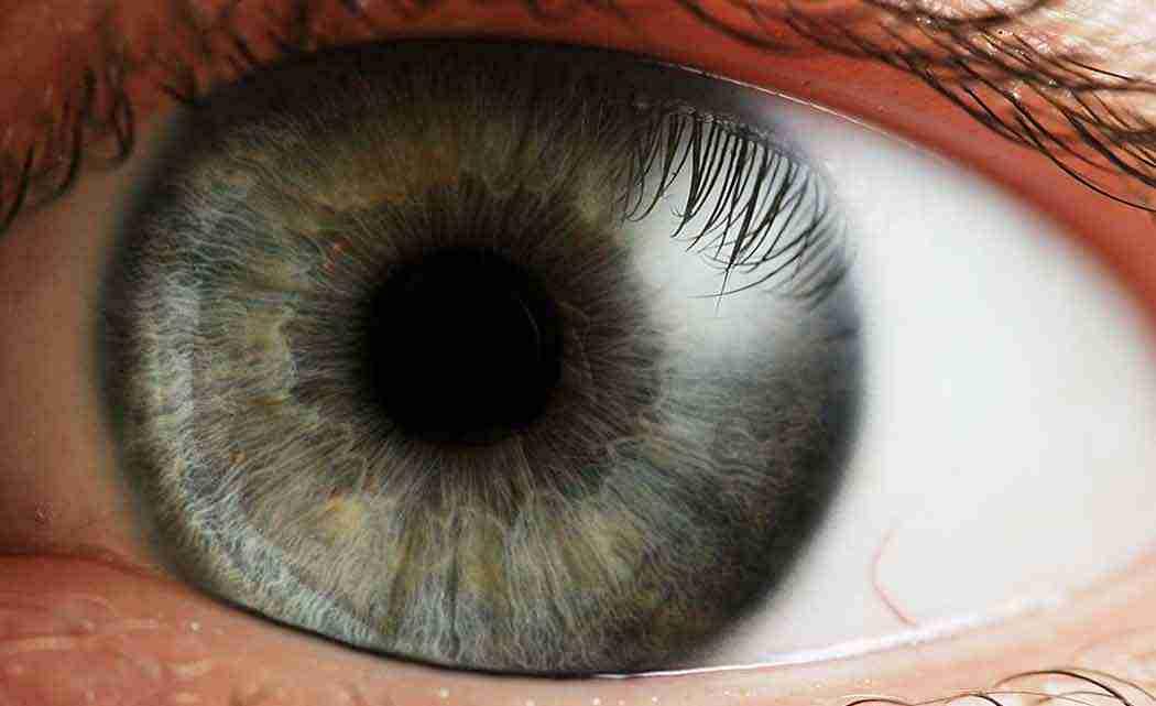 eye-eris