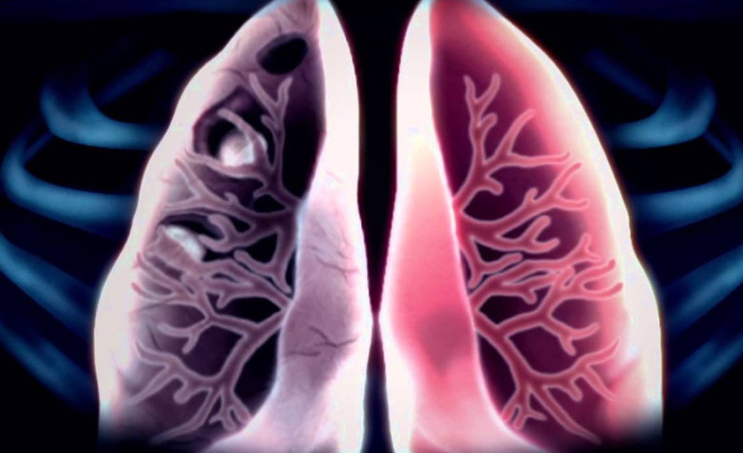 _0014_ tuberculosis