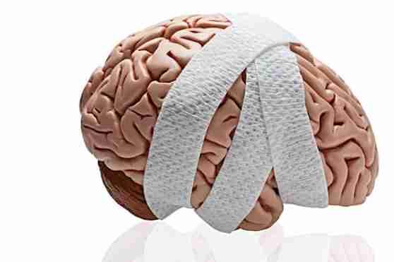 concussion-brain