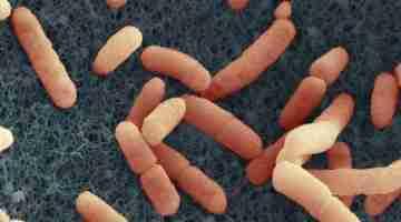 EHEC HUSEC 41, Entero hemorrhagic Escherichia coli O104:H4, Primärvergrößerung x 30.000, Maßstab = 1 µm