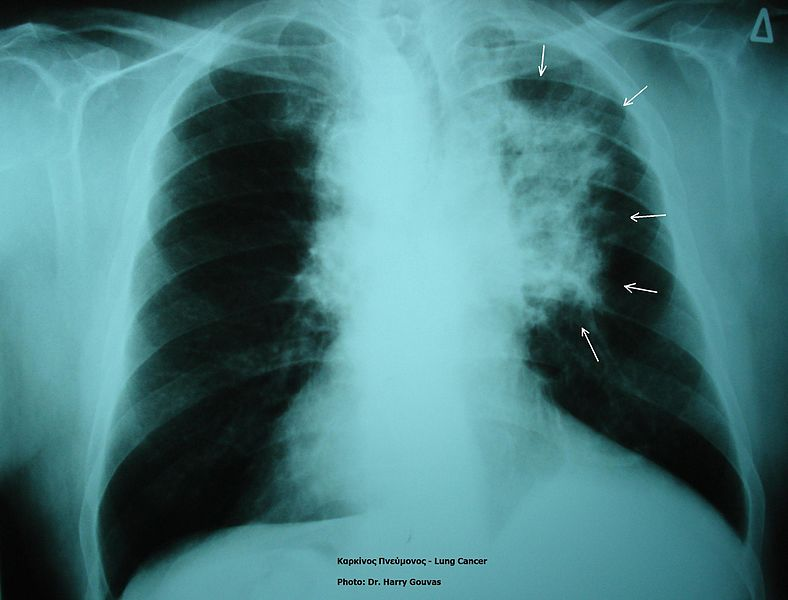 lung_cancer_in_xray