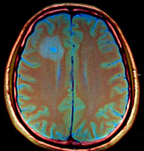 Brain_MRI_131749_rgbca-