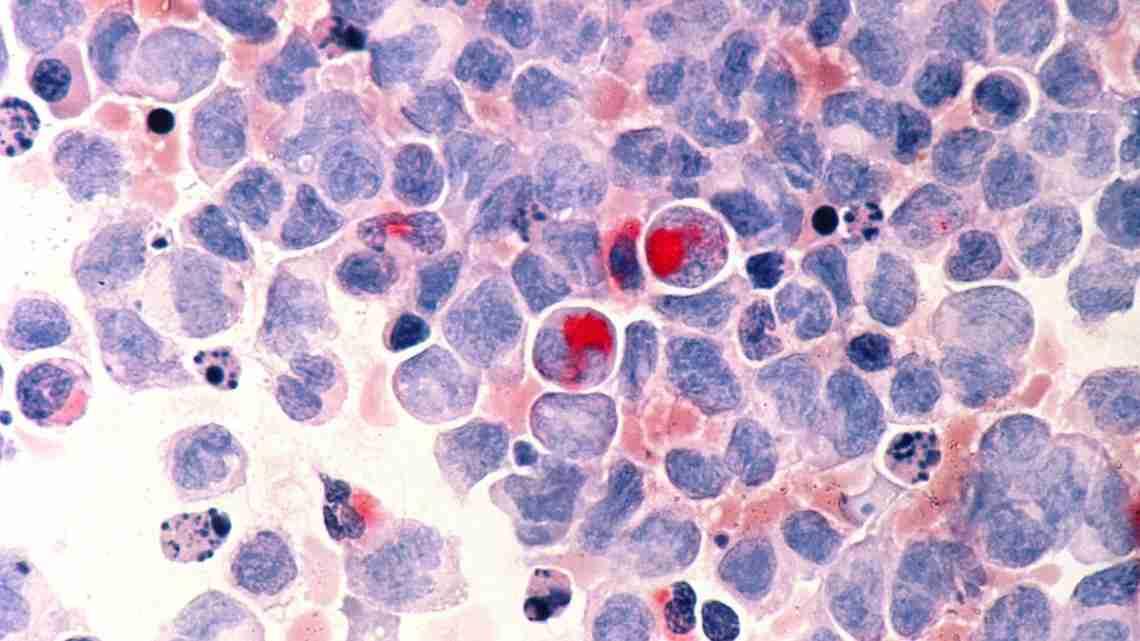 1200px-Leukemia_(aml)