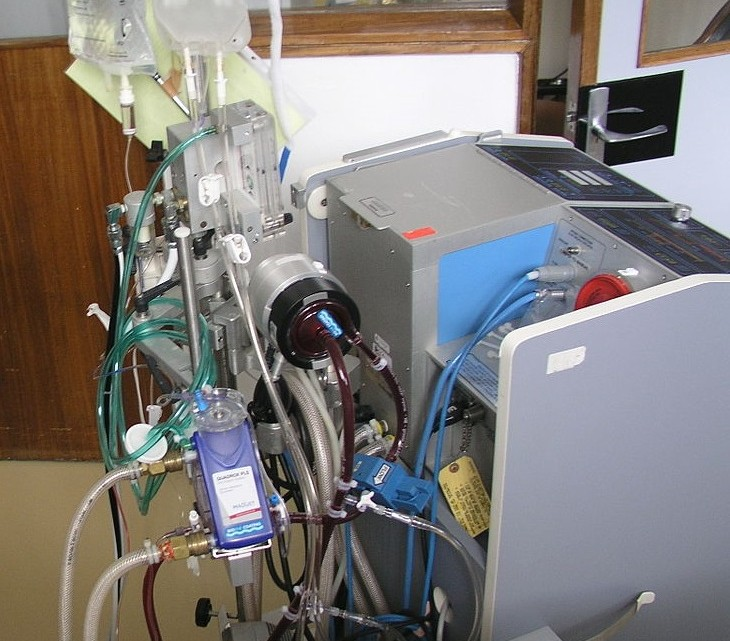 1200px-ECMO_in_H1N1_patient_in_Santa_Cruz_Hospital_-_Lisbon