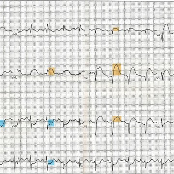 1200px-12_Lead_EKG_ST_Elevation_tracing_color_coded
