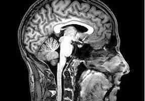 FMRI_Brain_Scan