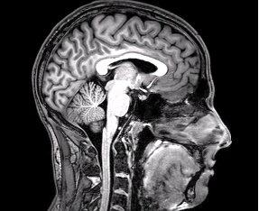 FMRI_Brain_Scan
