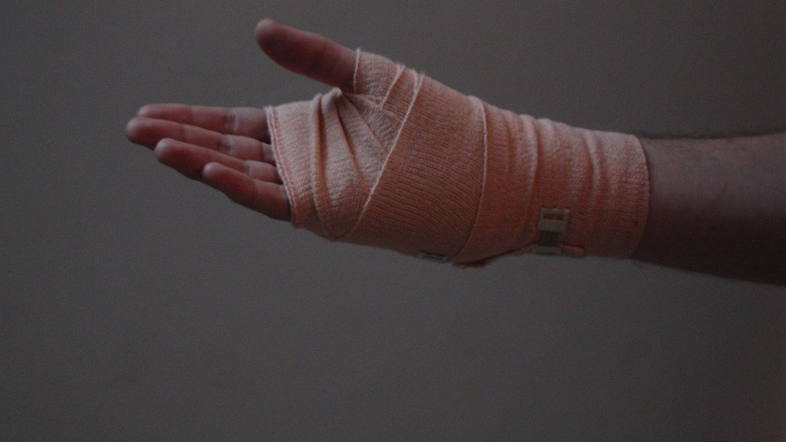 The_Hand,_The_Bandage