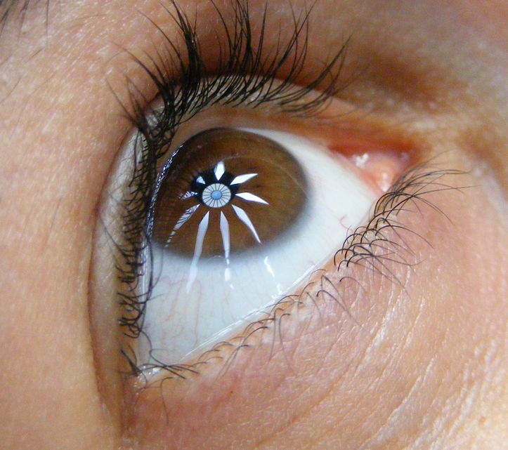 Wonder_eye